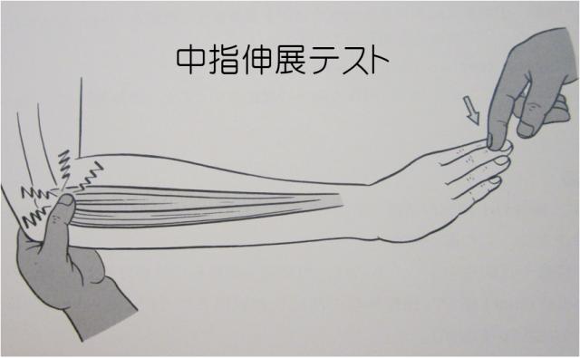 テニス肘中指伸展テスト