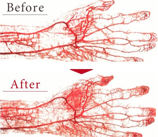 炭酸ミストで毛細血管拡張